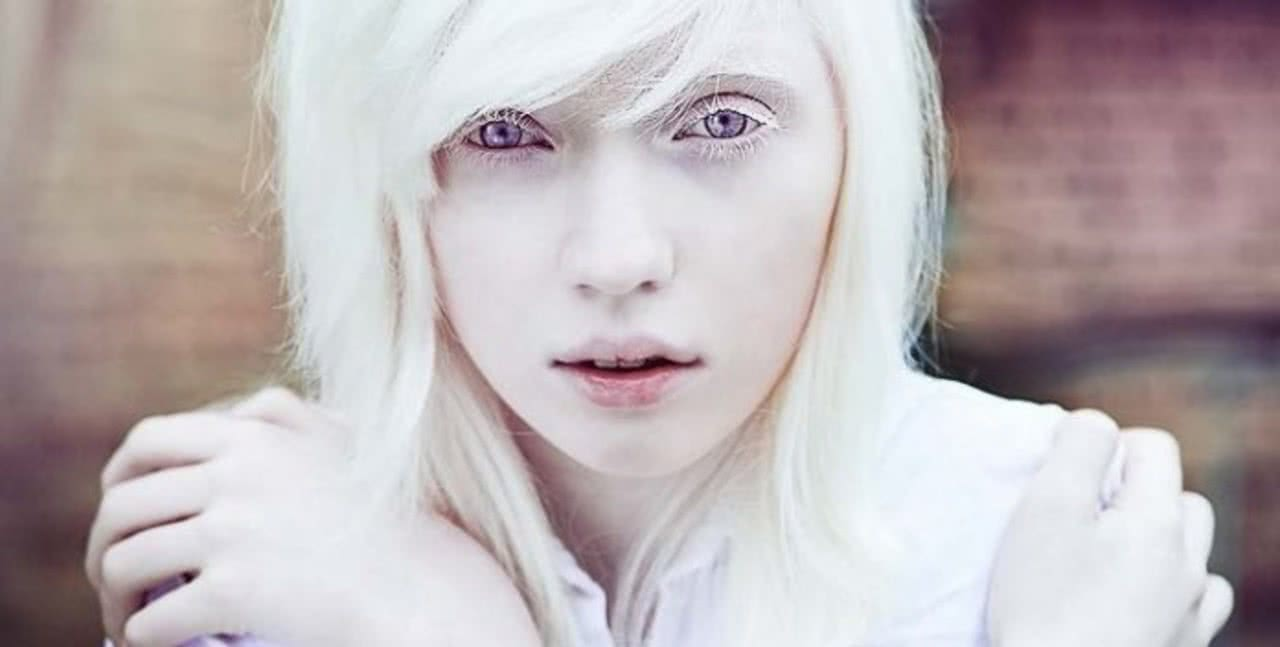 albinism #10
